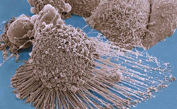 За счет чего происходит питание раковых клеток?