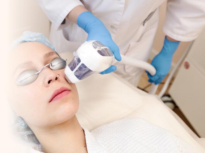 Лазерная эпиляция верхней губы: особенности и преимущества процедуры