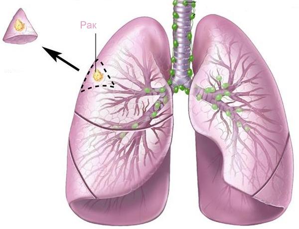 Блокирование метаболизма сахара замедляет рост опухолей в легких