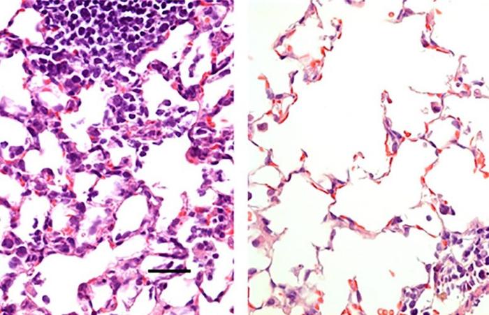 Разовая доза назальной вакцины против COVID-19 предотвращает заражение мышей