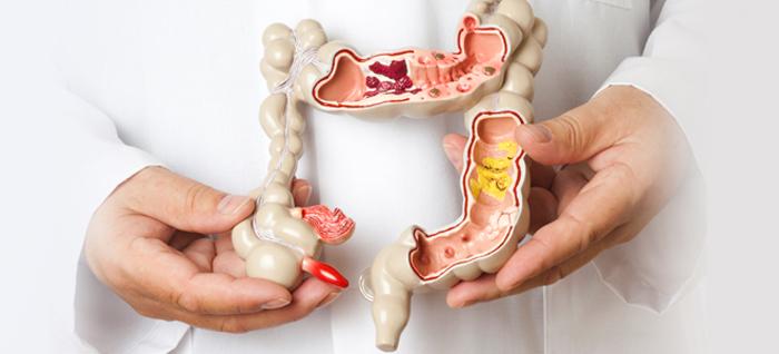 Операции на толстой кишке