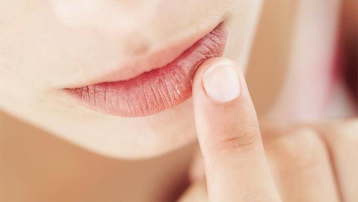 К какому врачу нужно идти, если часто возникают трещины на губах
