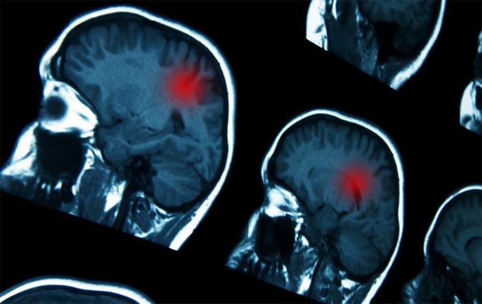 Лечение нейробластомы: опасность и надобность качественного лечения
