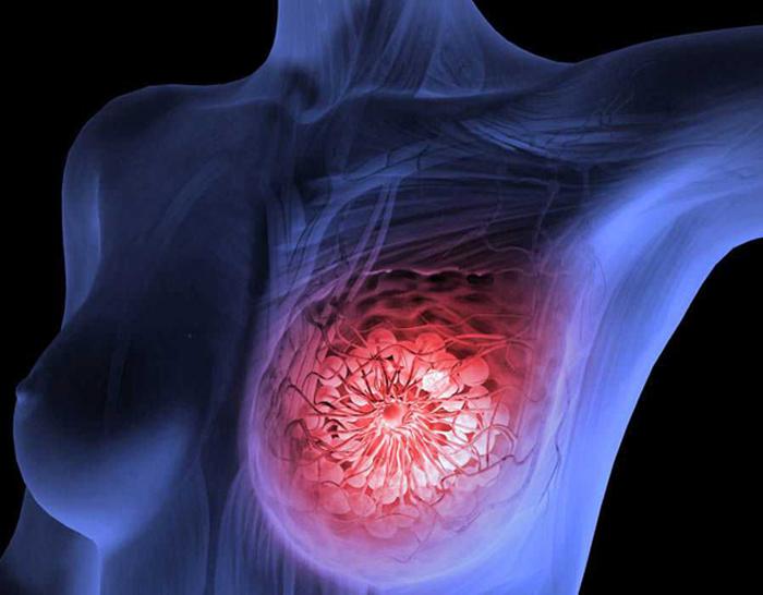 Рак молочной железы: причины, симптомы и основные принципы лечения
