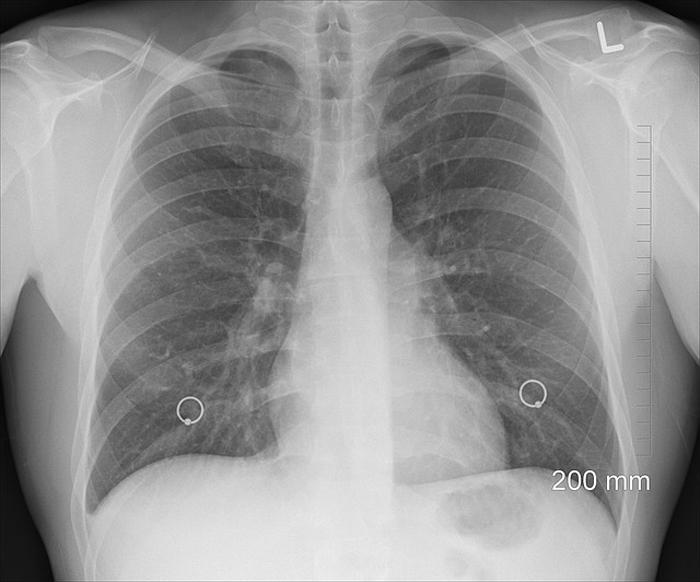 Пульмонология: показания и возможности специалиста