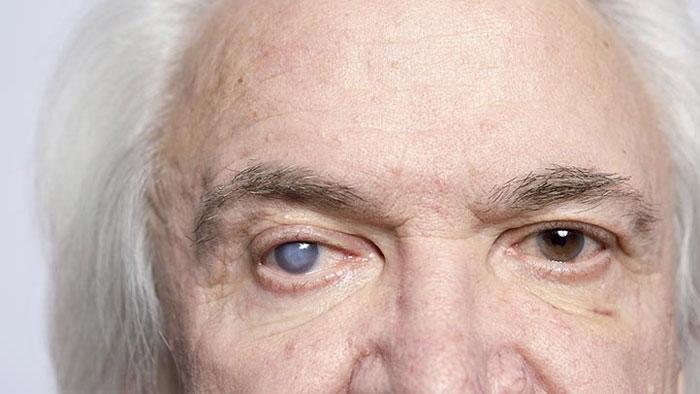 Как лечится катаракта?