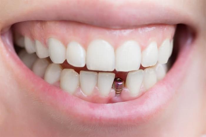 Современные виды имплантоллогии зубов