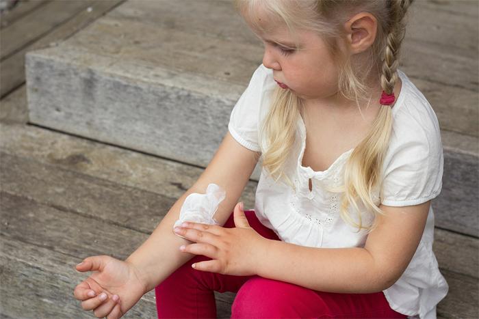 Виды псориаза и методы борьбы с заболеванием