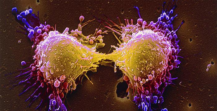 Реципрокная транслокация между хромосомами
