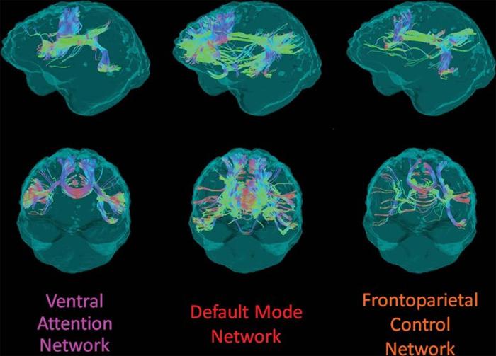 Целостность белого вещества и мутация гена Альцгеймера